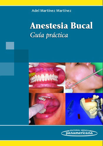 anestesia-bucal-guia-practica