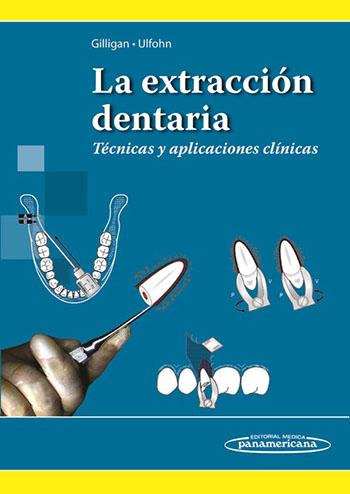 la-extraccion-dentaria-tecnicas-y-aplicaciones-clinicas