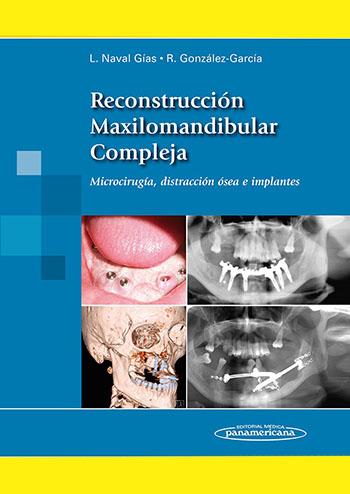 reconstruccion-maxilomandibular-compleja